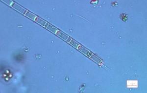 Aulacoseira-granulata-x600_modif